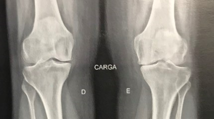 Infiltração-no-joelho-as-principais-dúvidas-1