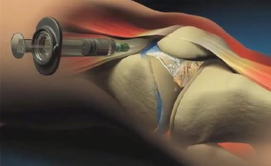 Infiltração no joelho - as principais dúvidas 3